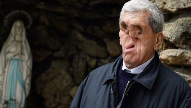 El hombre sin rostro que saludó al papa Francisco